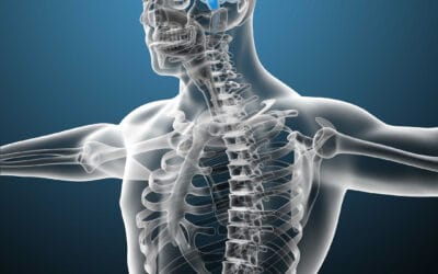 Chiropractic and Arnold Chiari Malformation